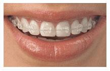 welch orthodontics ceramic braces image
