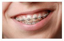 welch orthodontics metal braces image