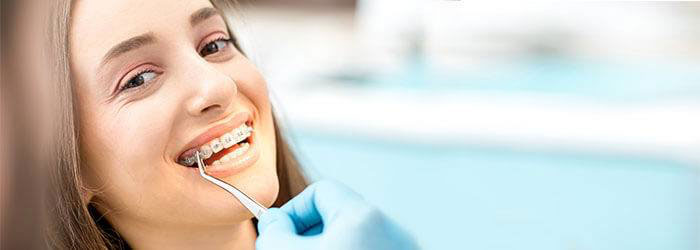 welch orthodontics taking care of your braces image