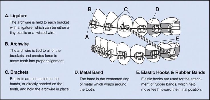 welch orthodontics parts of braces image