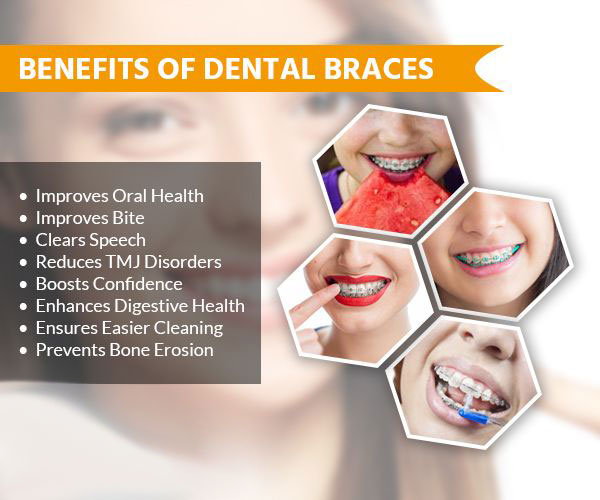 welch orthodontics benefits of braces image
