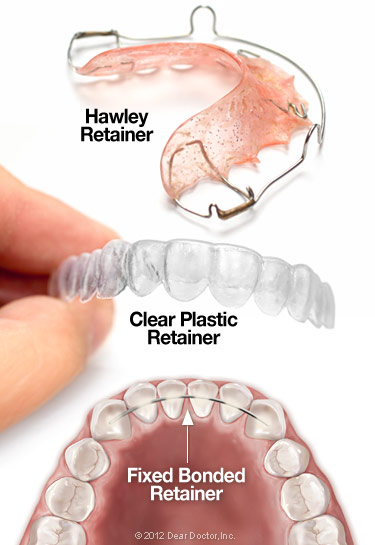 welch orthodontics retainer image